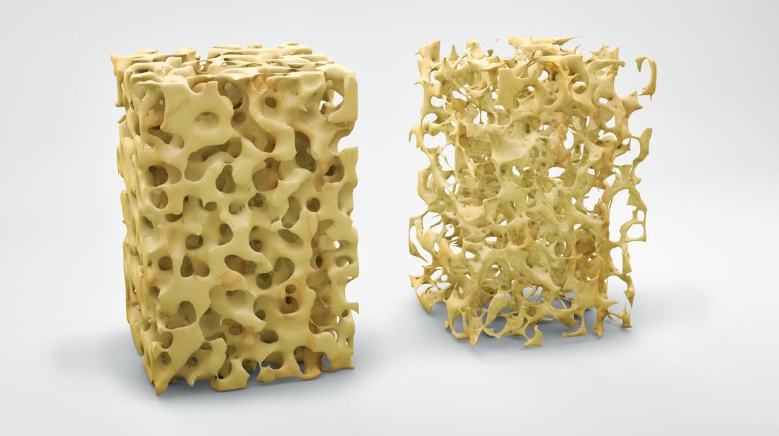 ossa osteoporosi