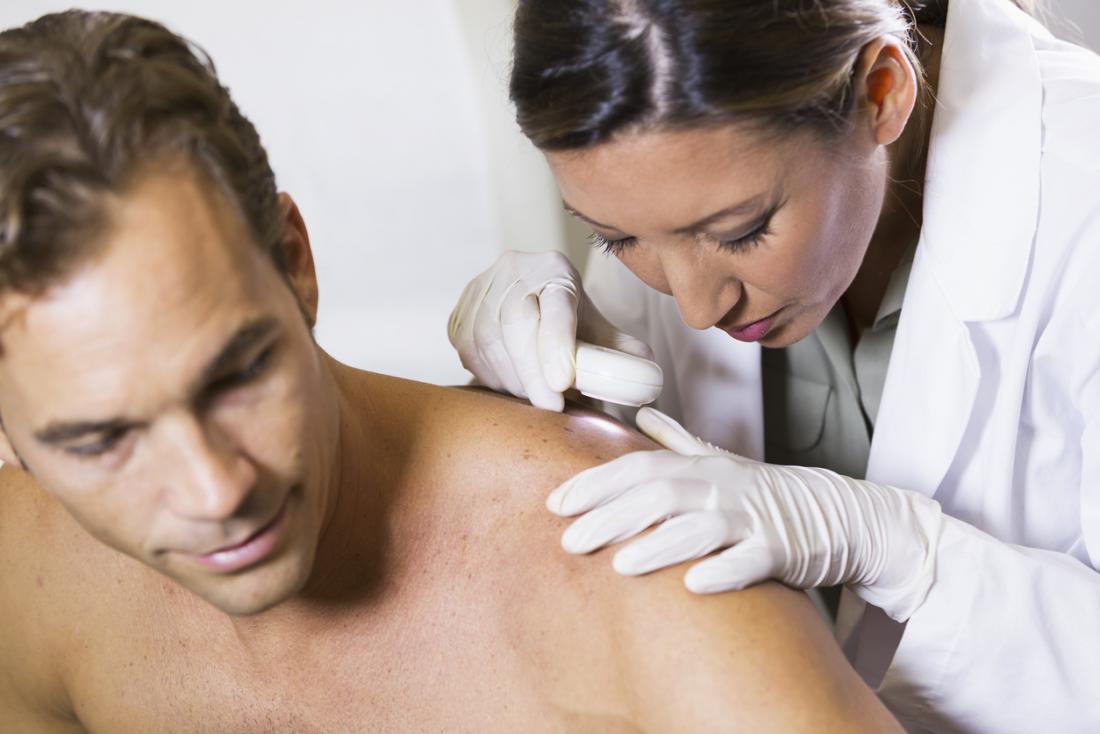 Dermatologista, olha, paciente, costas
