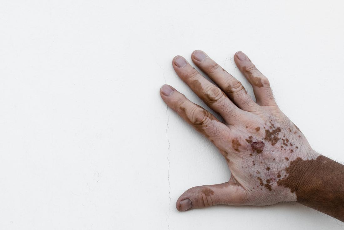 Витилиго ръка