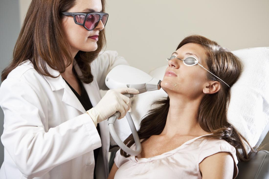Дерматологът премахва косата с лазер