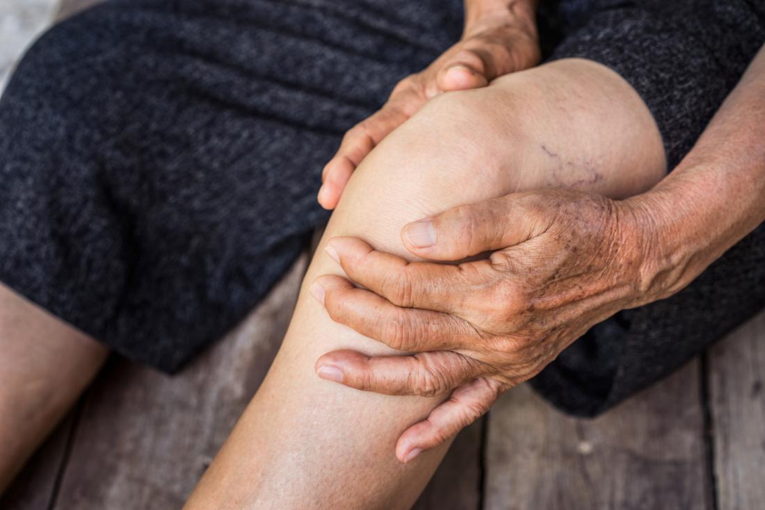 Ginocchio anziano della tenuta della donna nel dolore con le vene varicose sulla gamba.