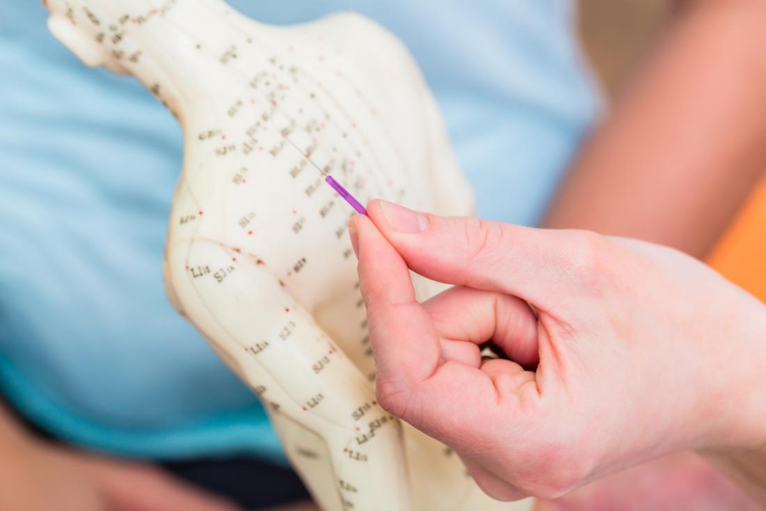 Persona che punta l'ago di agopuntura sul modello del corpo umano con punti di pressione.