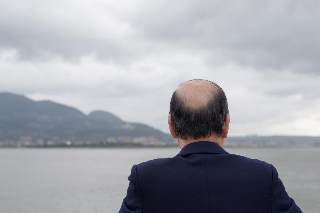 アムラオイルは毛を後退させるのに役立つかもしれません
