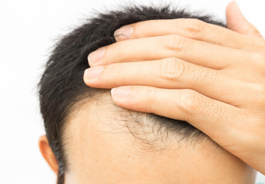 Człowiek z cofniętą linią włosów i przerzedzeniem wypadania włosów.