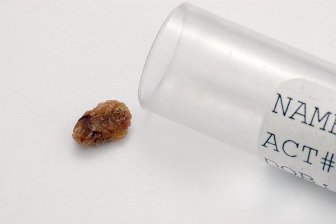 Бъбречен камък на бял фон, с проба с него.
