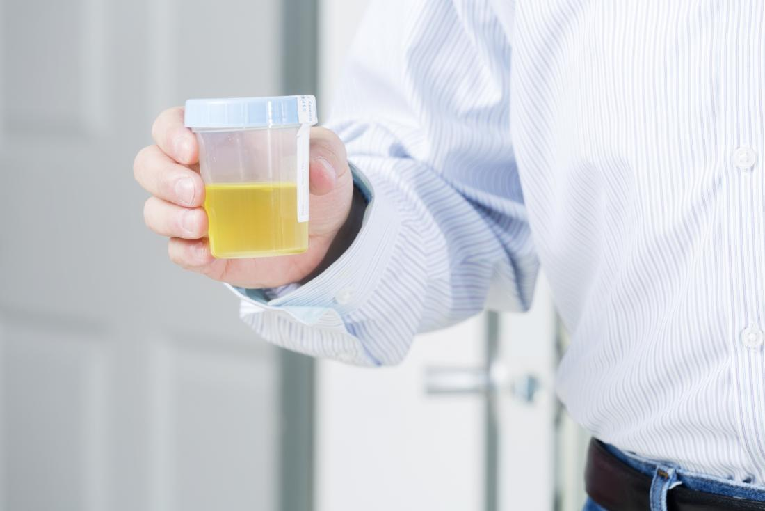 homme tenant un échantillon d'urine