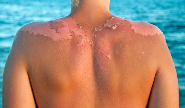 Oparzenie słoneczne na plecach osób