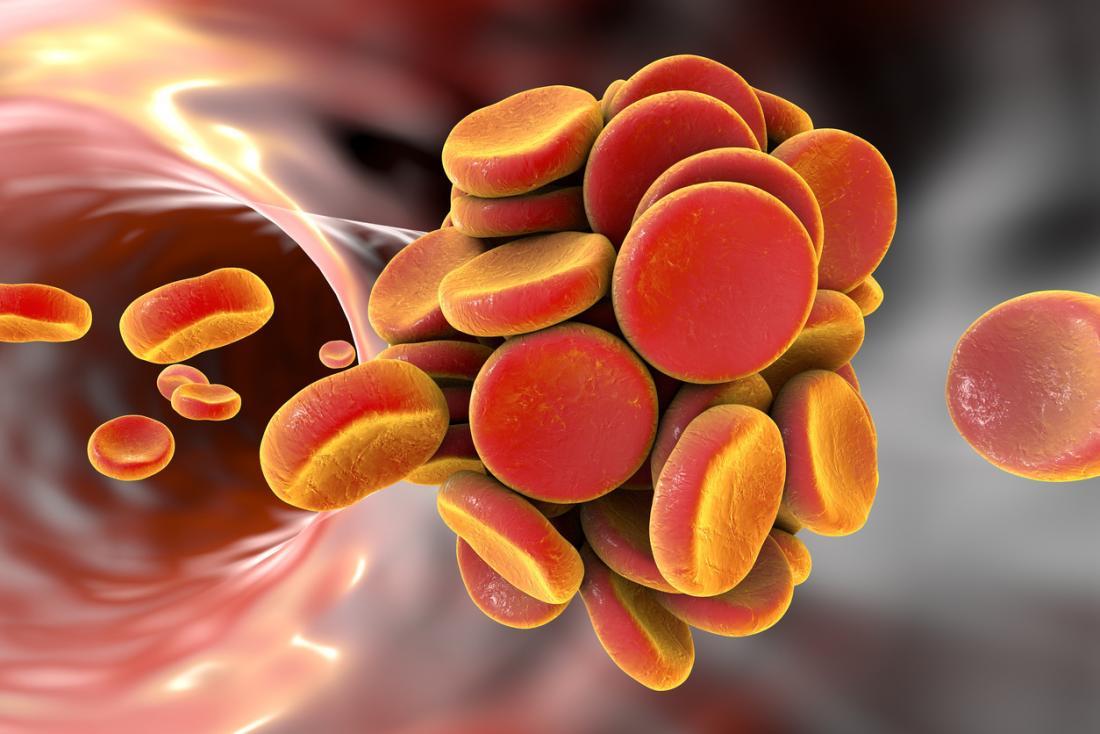 Blutgerinnsel durch Thrombose verursacht.