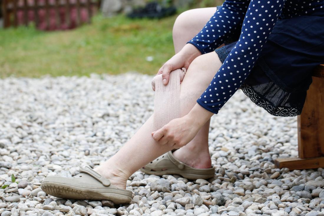 Frau, die Kompressionsstrümpfe auf Bein anwendet.