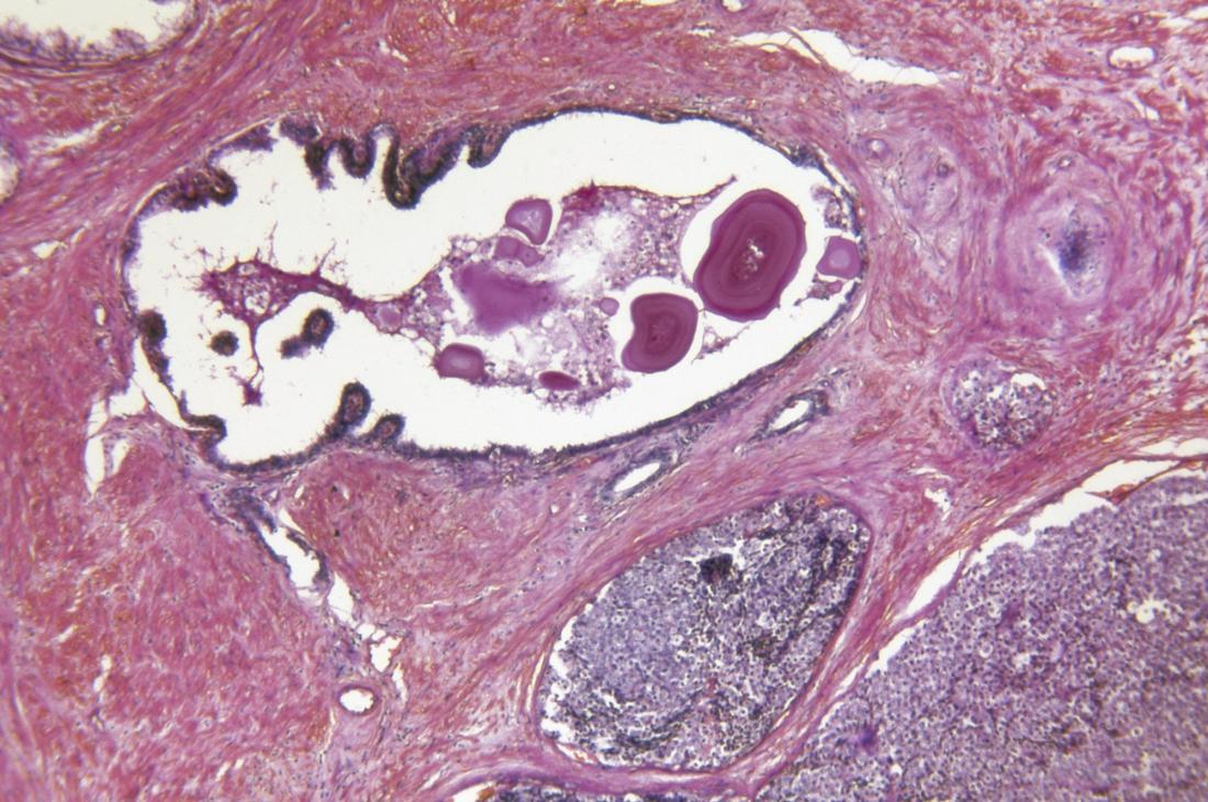 Prostat Gland Adenokarsinomu.
