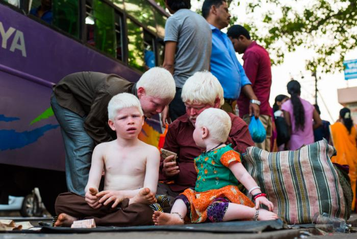 [Famille albinos indienne mendiant]
