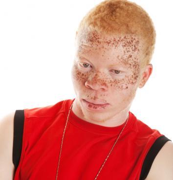 [Garçon africain avec l'albinisme]