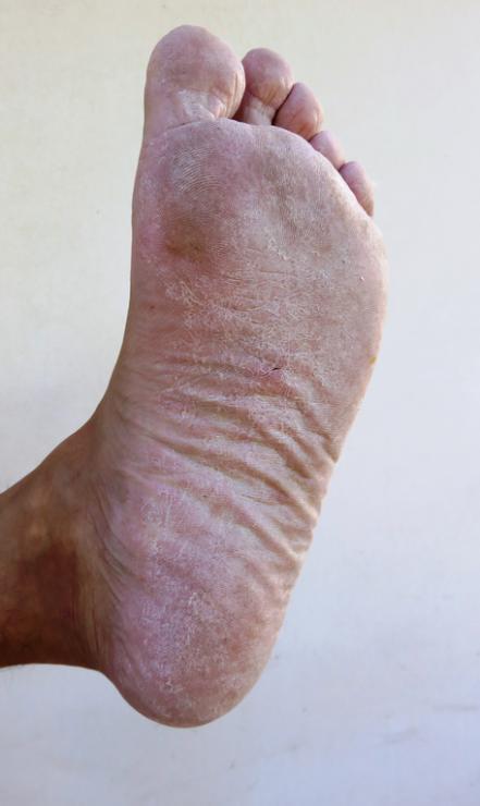 [Fußpilz auf Fußsohle]