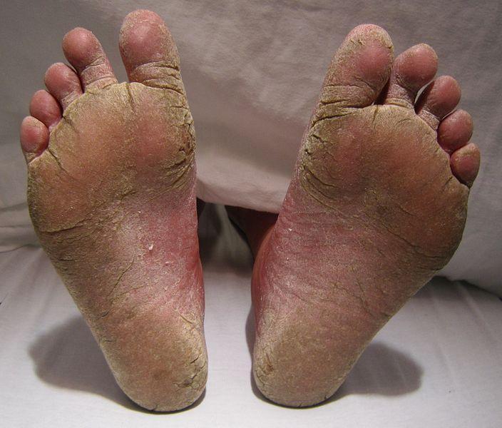 [Fußpilz - ein schwerer Fall an beiden Füßen]