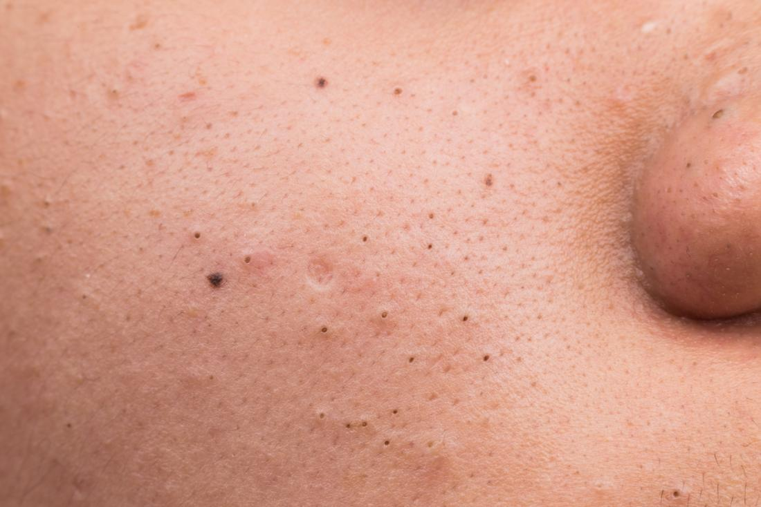 Siyah noktalar, cildin yüzeyinde oksitlenmiş melanin cepleridir.