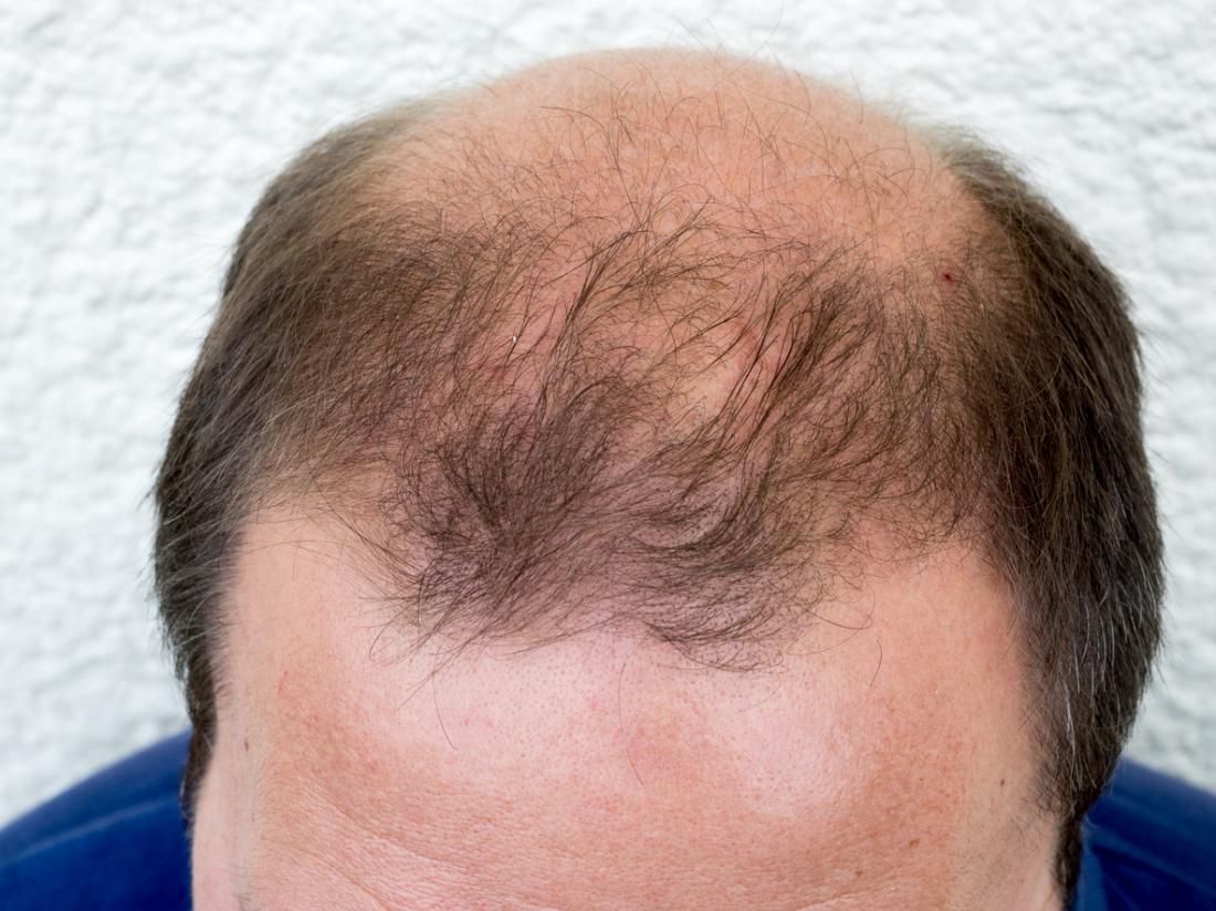 男性型の脱毛症