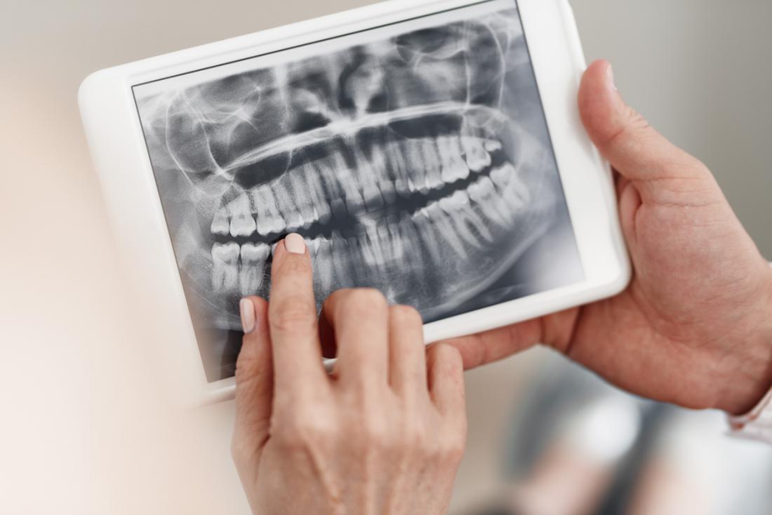歯科X線を握っている男性と女性の手。