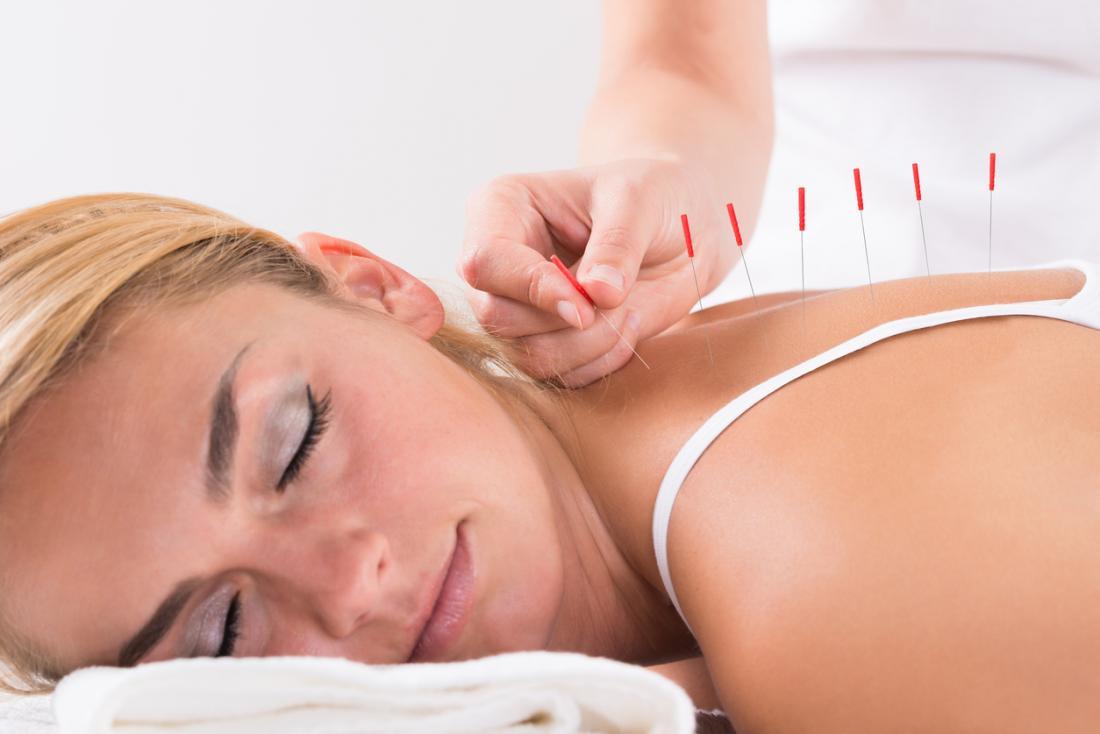 Cerca de 20 por cento das pessoas com fibromialgia tentam acupuntura nos primeiros 2 anos. Pode funcionar, mas mais pesquisas são necessárias.