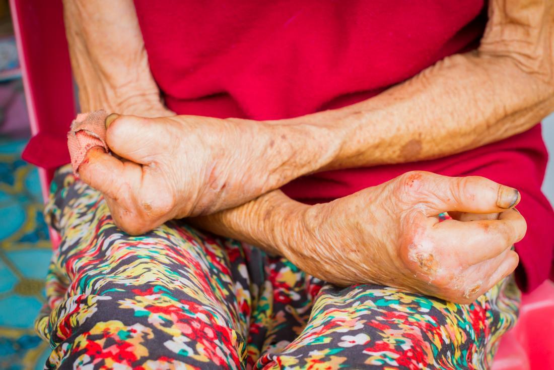 Проказа на ръцете от проказа