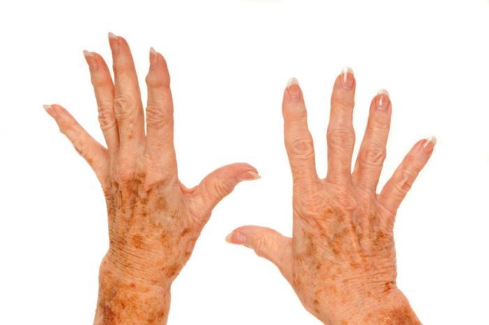 [ръцете на дерматозата]