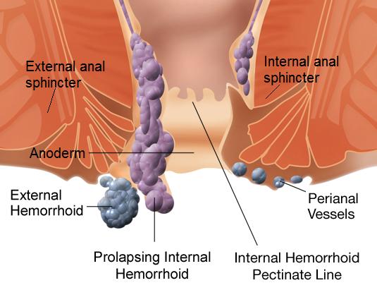 Hemorróidas e pilhas demonstradas no diagrama ou no reto. Crédito da imagem: Mikael Häggström, (2012, 17 de setembro)