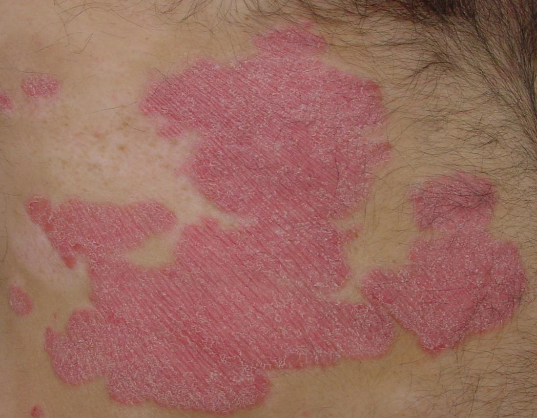 Bệnh vẩy nến mảng bám là loại bệnh vẩy nến phổ biến nhất.