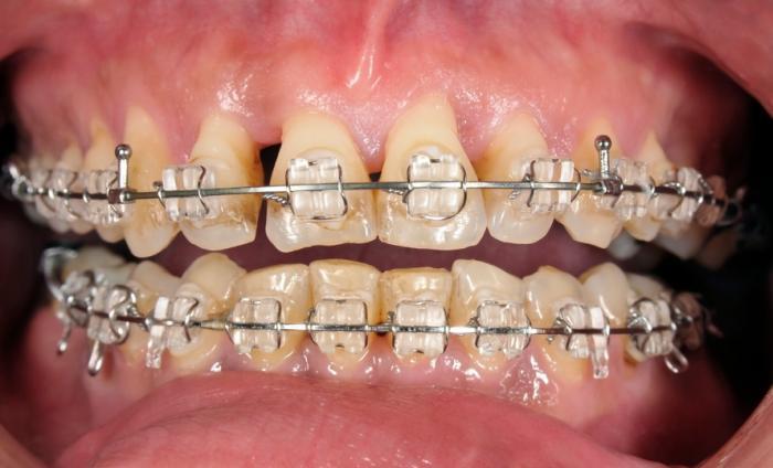[dents avec des accolades]