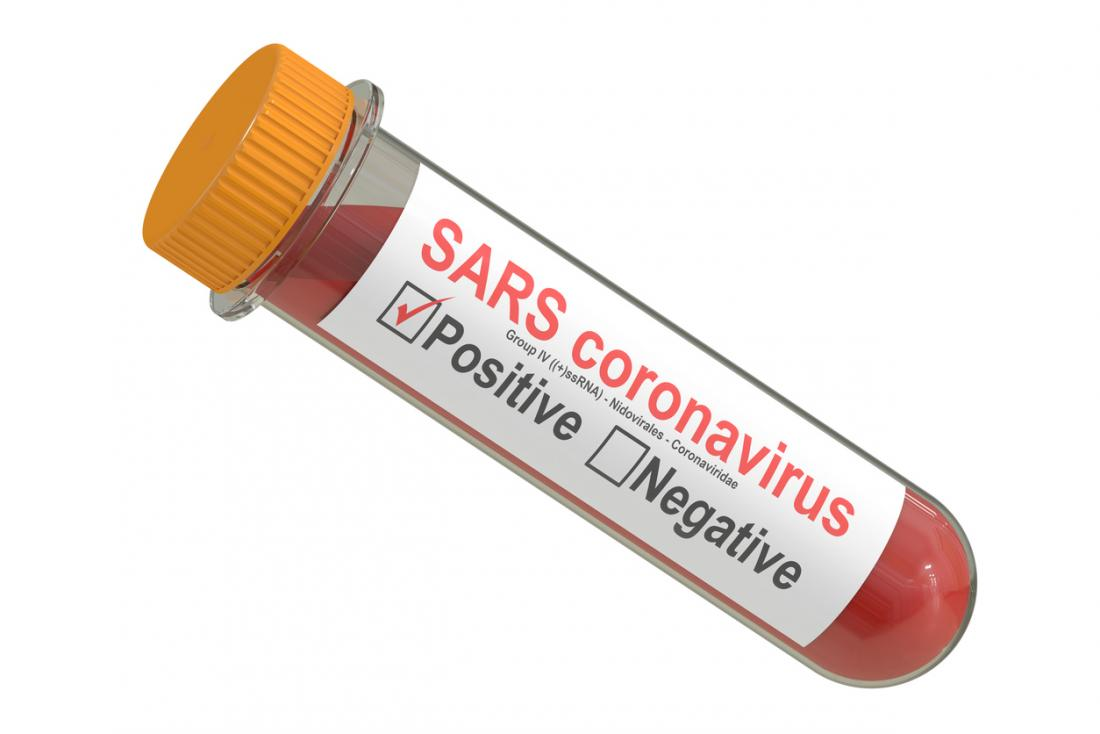 [SARS Labortests]