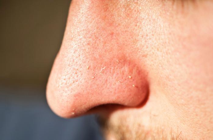 Đầu trắng trên mũi
