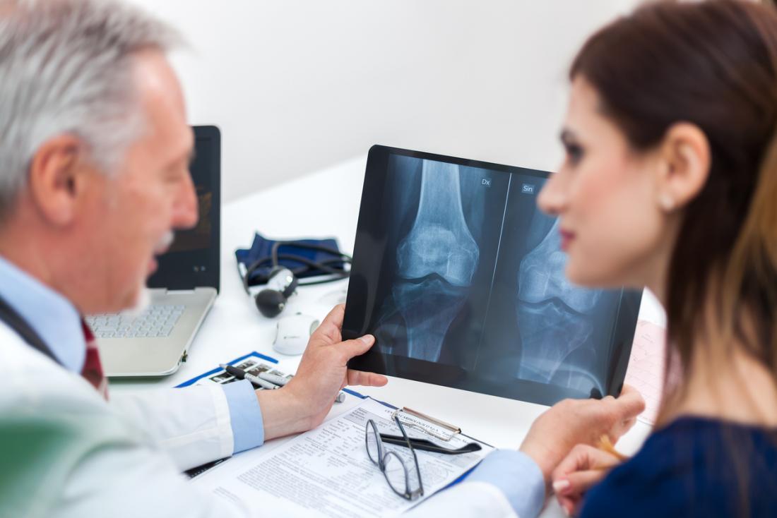 医者と患者は膝骨のx線を見る。