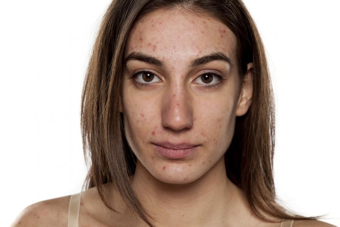 млада жена с пъпки