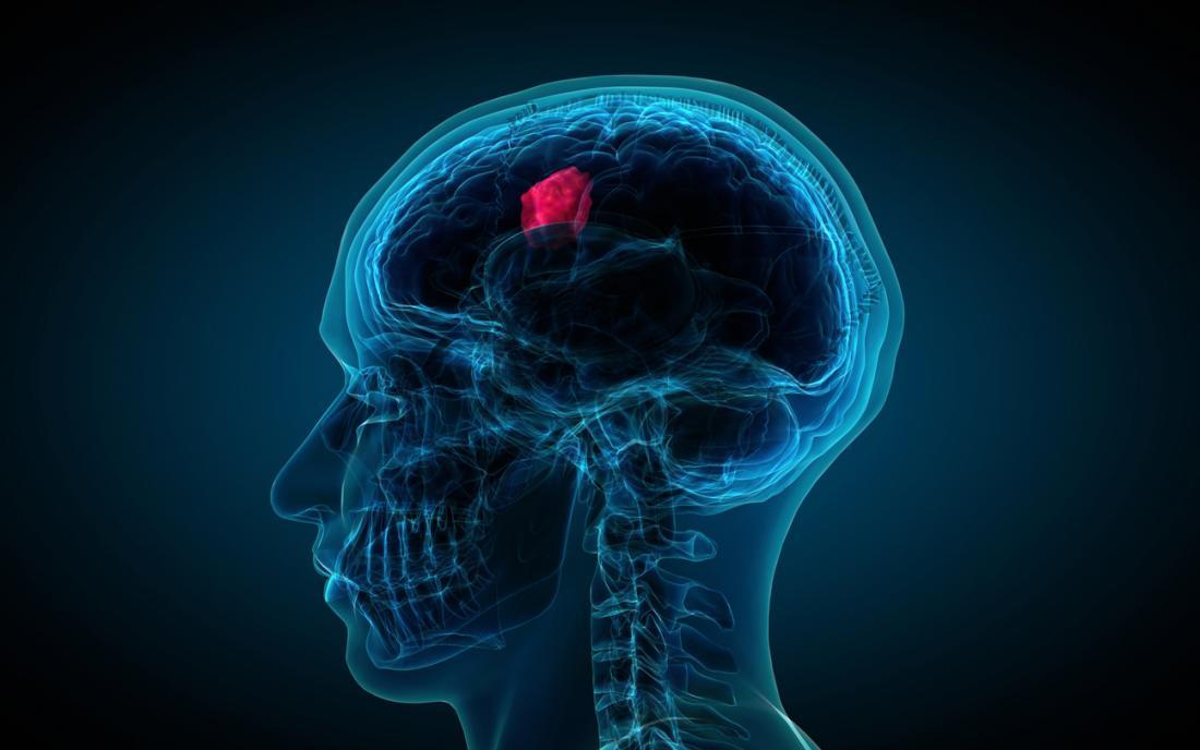 une illustration représentant une tumeur cérébrale