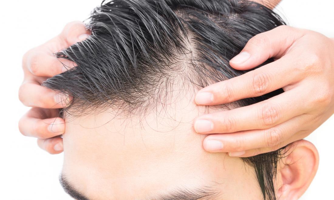 ravvicinata dei capelli dell'uomo calvo