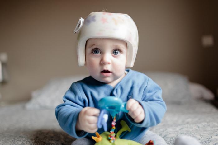 赤ちゃんの矯正ヘルメットを着て