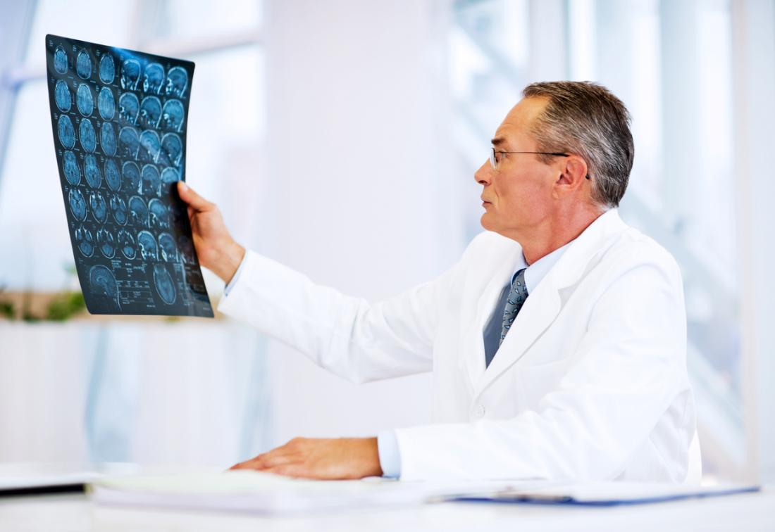médico olhando para exames de ressonância magnética do cérebro