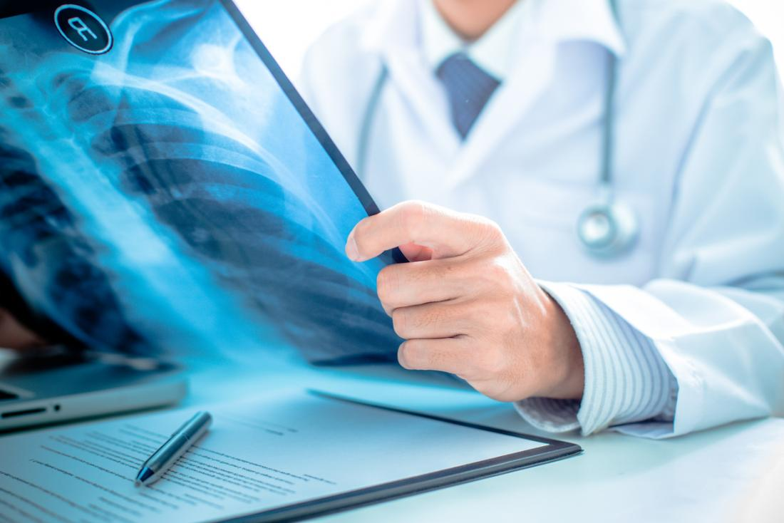 Doktor, der Lungen-Röntgenstrahl betrachtet