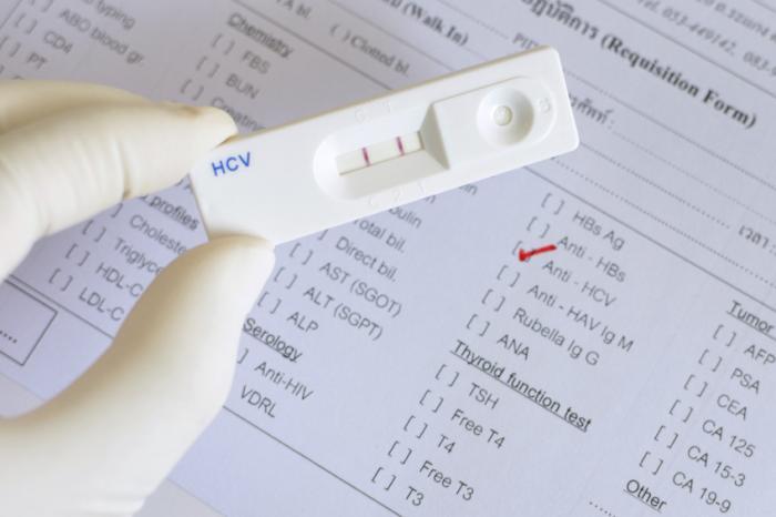[HCV検査]
