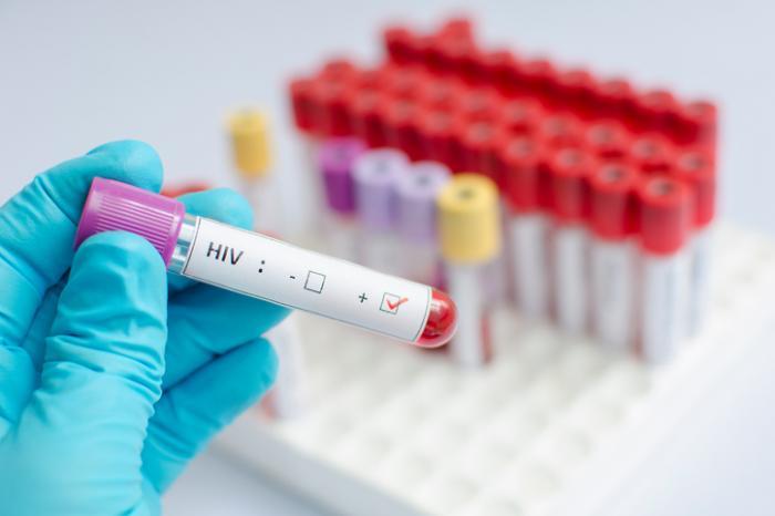 HIV-Blutprobe