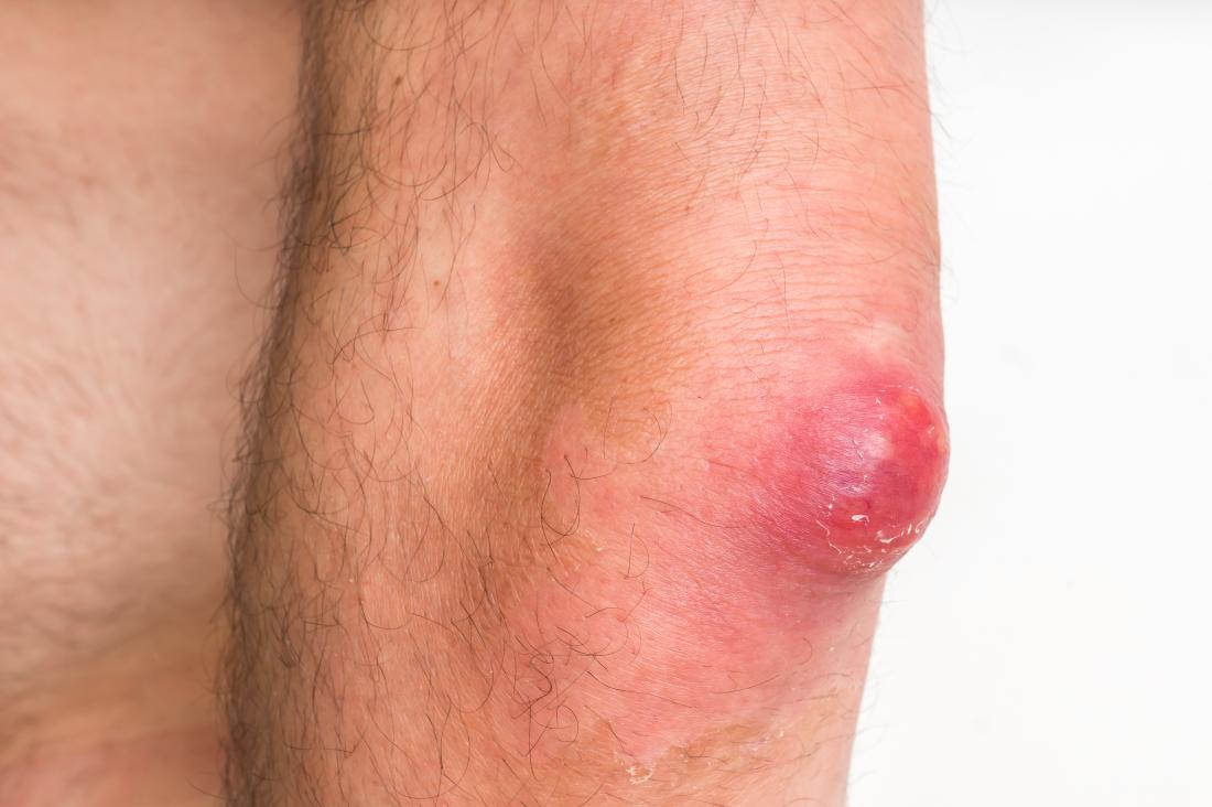 沸騰は感染症や瘢痕化などの合併症を引き起こす