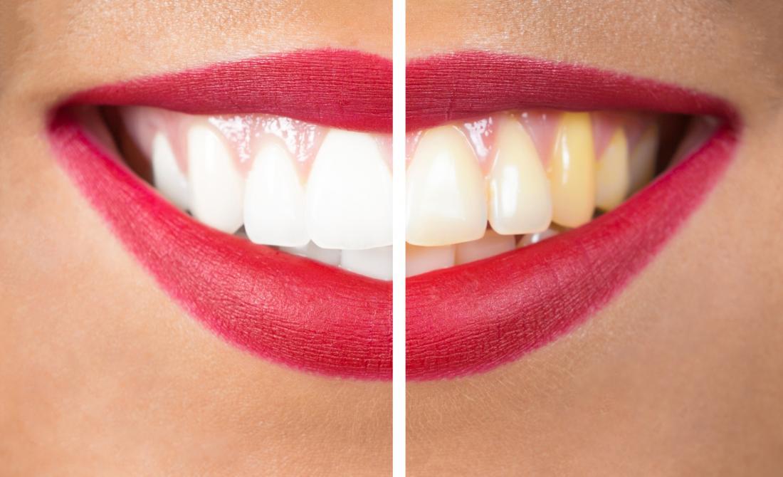 womans răng trước và sau khi làm trắng