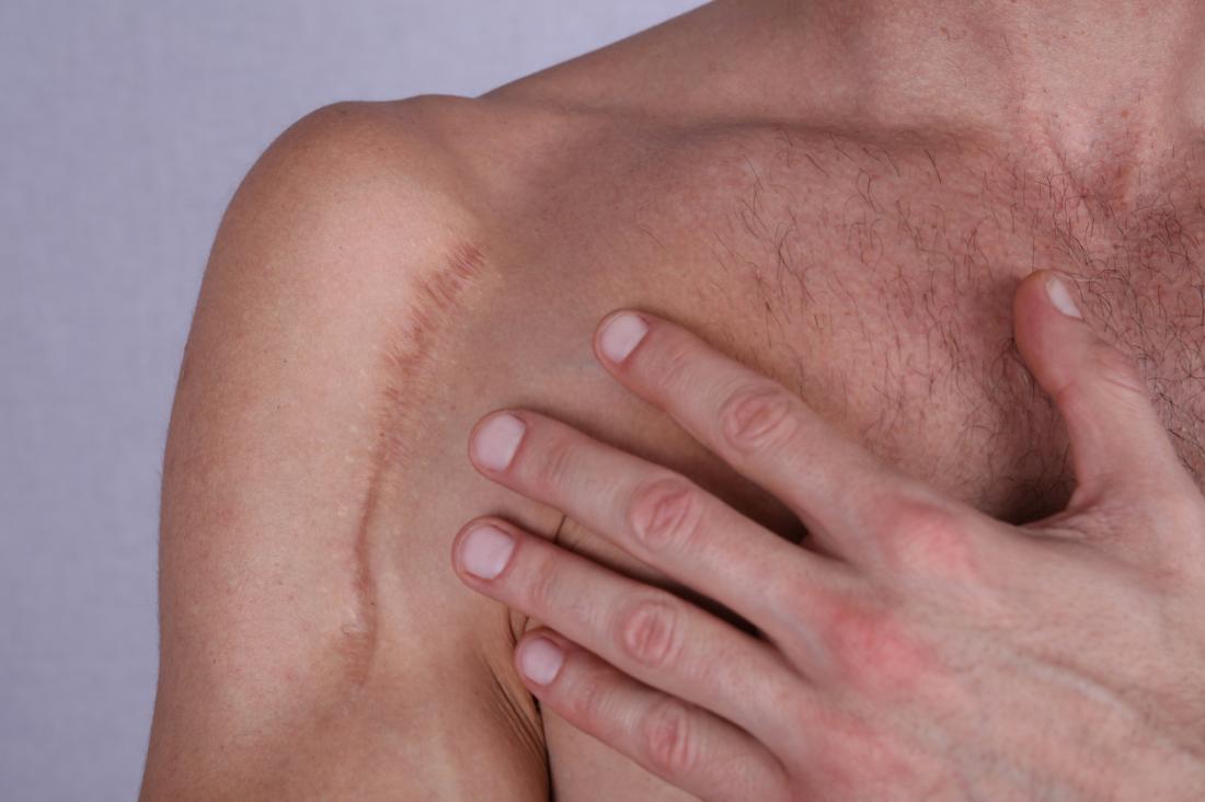 Cicatriz ao longo do ombro de um homem.