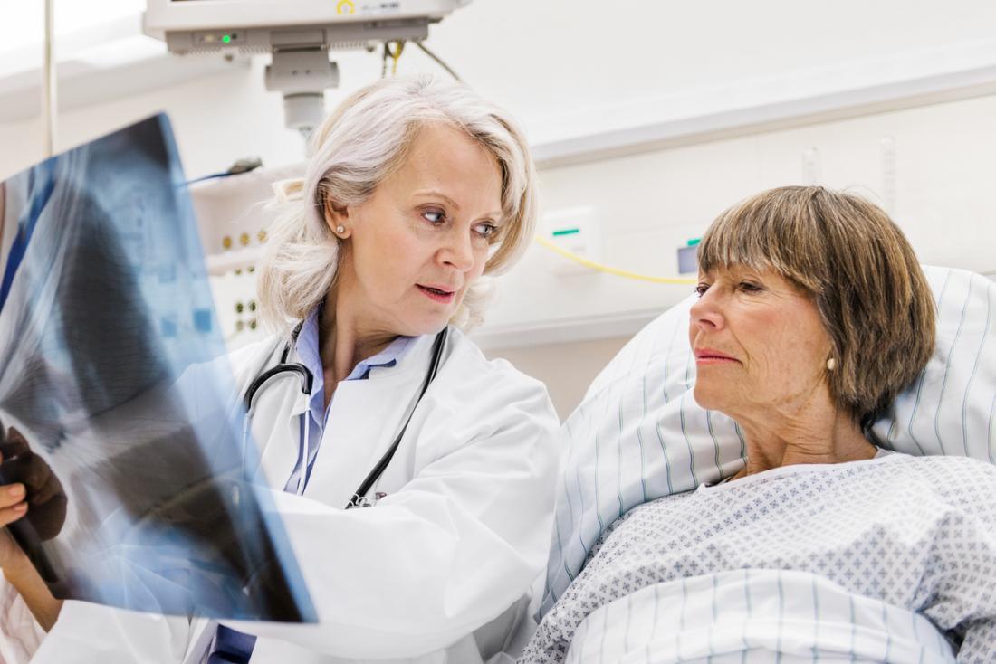 Paziente femminile maturo nel letto di ospedale, con medico femminile maturo che la mostra una radiografia dei suoi polmoni.