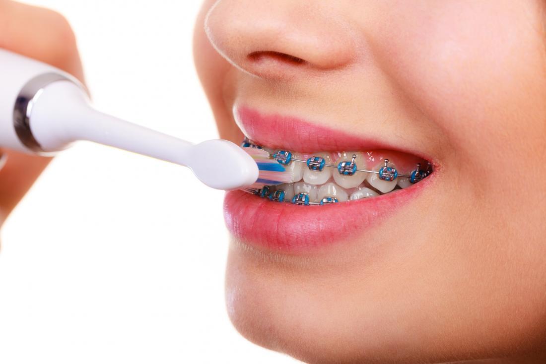Dişlerimi hamilelik sırasında tedavi edebilir miyim