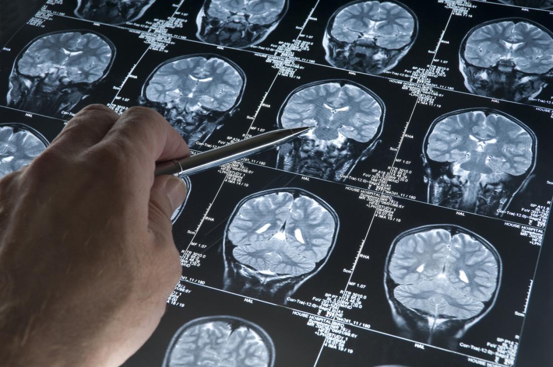 un dottore guardando scansioni cerebrali