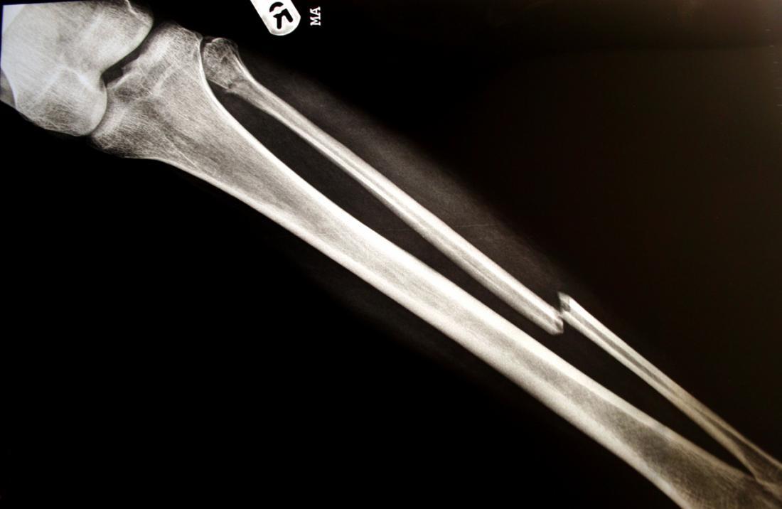 jambe cassée