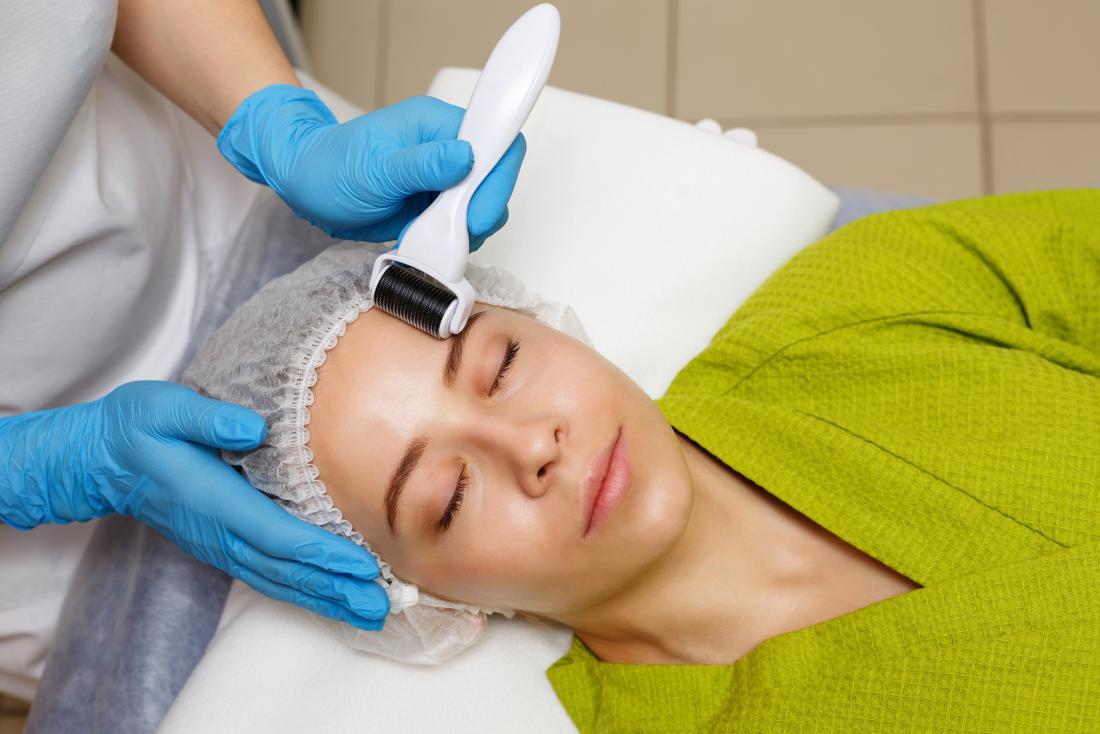 Donna che ha un trattamento di bellezza per la fronte con dermaroller.