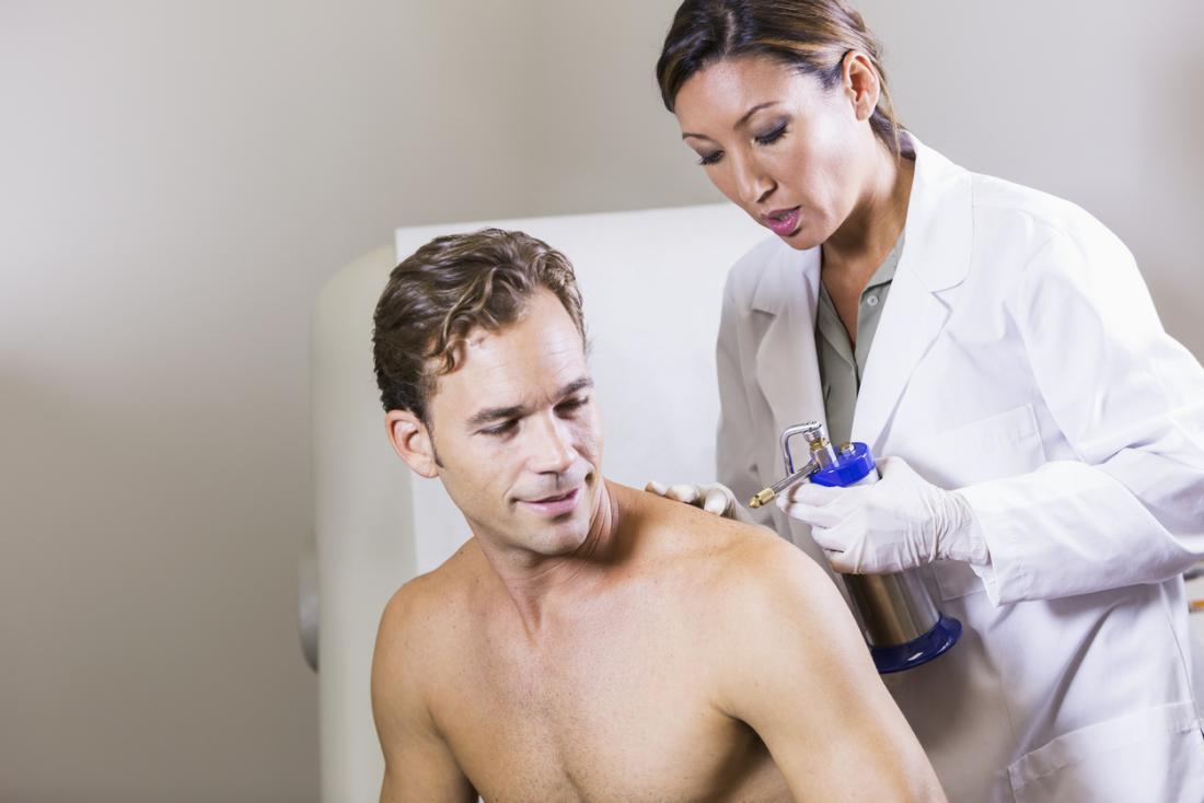 人の肩に冷凍療法を行う医師