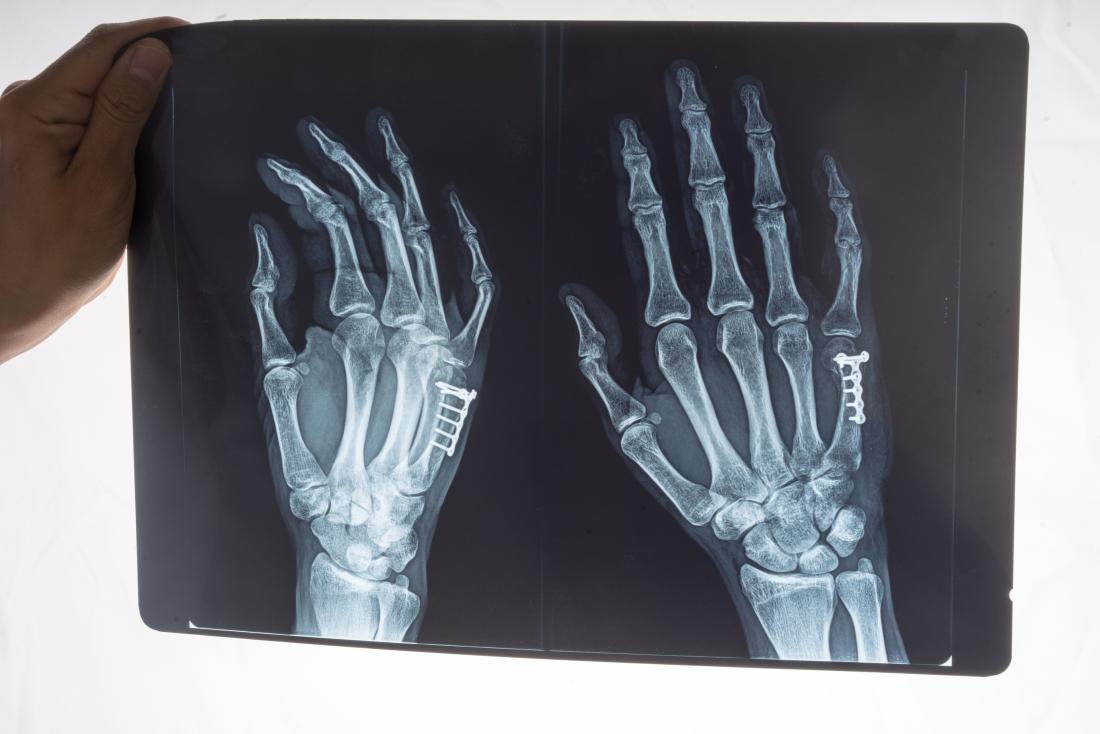 Raio X da mão para determinar o polegar torcido