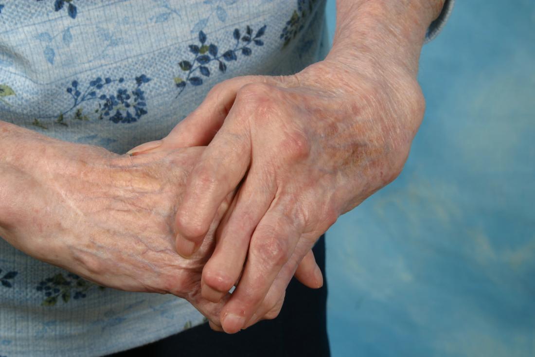 Mãos artríticas dobradas.