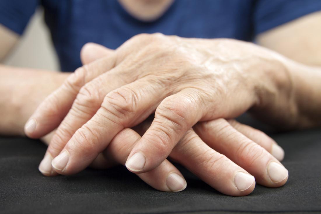 Mãos da mulher que indicam a artrite reumatóide.